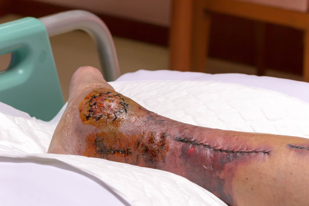 stapled: The nurse is washing the leg surgery wound with patient in the hospital
