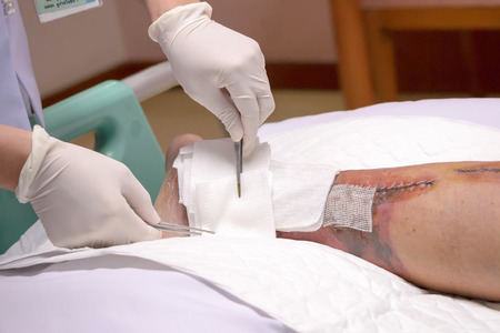 incision: The nurse is washing the leg surgery wound with patient in the hospital