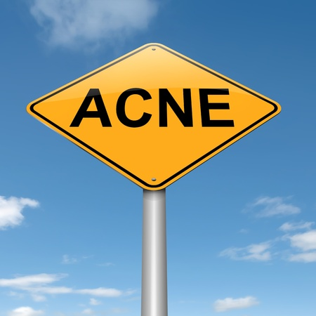 zit: Illustration depicting a roadsign with an acne concept  Sky background