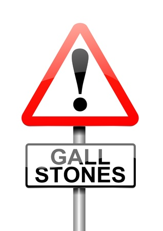 malady: Illustration depicting a sign with a Gall stones concept