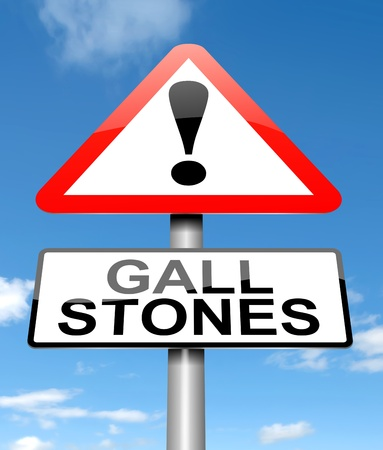 gallstones: Illustration depicting a sign with a Gall stones concept