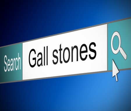 gallstones: Illustration depicting a screen shot of an internet search bar containing a Gall stones concept