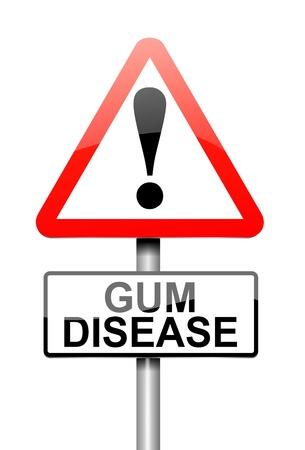Illustrazione raffigurante un cartello con un concetto di malattia di gomma Archivio Fotografico