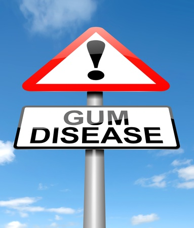 Illustration depicting a sign with a Gum disease concept