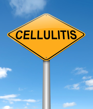 bacterial infection: Illustration depicting a sign with a Cellulitis concept.