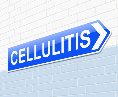 skin infections: Illustration depicting a sign with a Cellulitis concept.