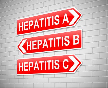 型肝炎の概念と記号を描いたイラスト。 写真素材