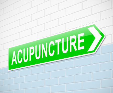 Illustration depicting a sign with an acupunture concept. illustration