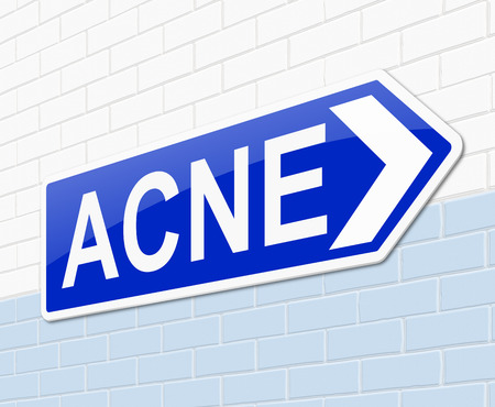 dermatology: Illustration depicting a sign with an acne word