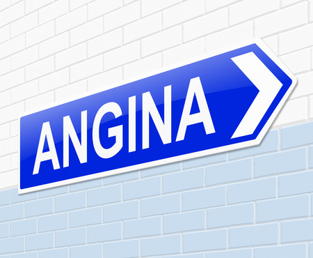 angina: Illustration depicting a sign with an Angina concept.