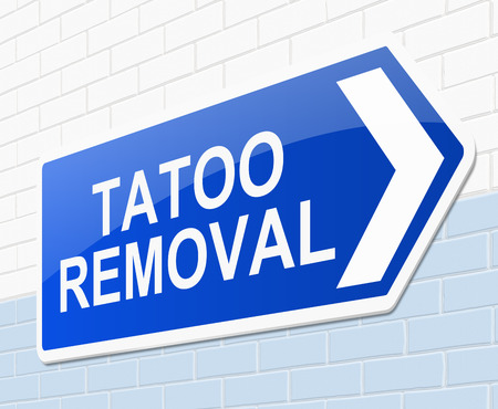 Illustration depicting a sign with a tatoo removal concept. Imagens