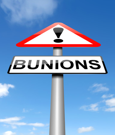 Illustration depicting a sign with a bunions concept.