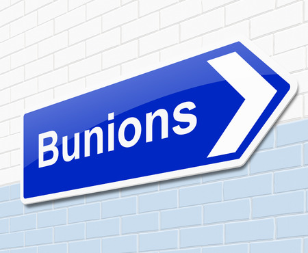 lump: Illustration depicting a sign with a bunions concept.