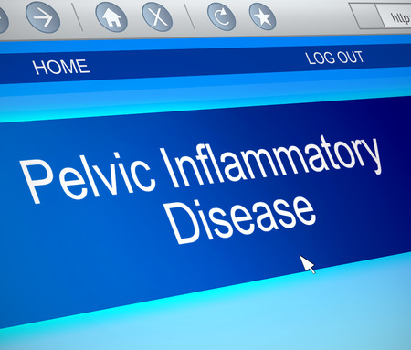 pelvic: Illustration depicting a computer screen capture with a Pelvic inflammatory disease concept.