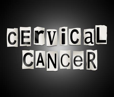 cervical: Illustration depicting a set of cut out printed letters arranged to form the words cervical cancer.