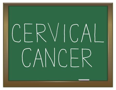 cervical: Illustration depicting a green chalkboard with a cervical cancer concept.
