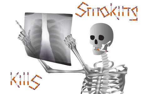 Warning Art poster:  Smoking Kills. Vector illustration. Illustration