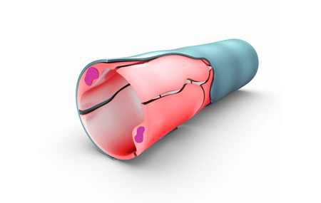 heart muscle cells: Capillaries Stock Photo