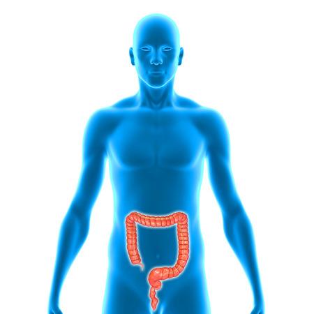 colitis: Large intestine