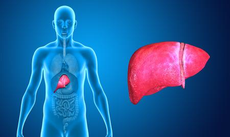 liver cancer: Wide liver