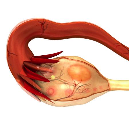 cancer woman: Ovary