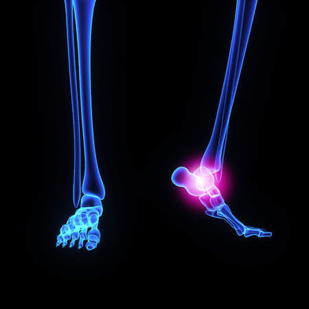Ankle Joint Stock Photo