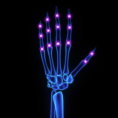 Finger joints photo