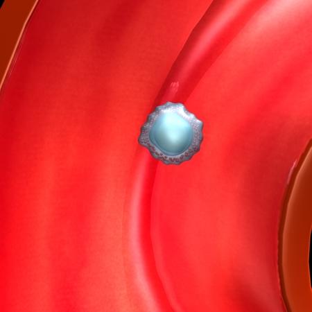 in vitro fertilization: Ovum Stock Photo