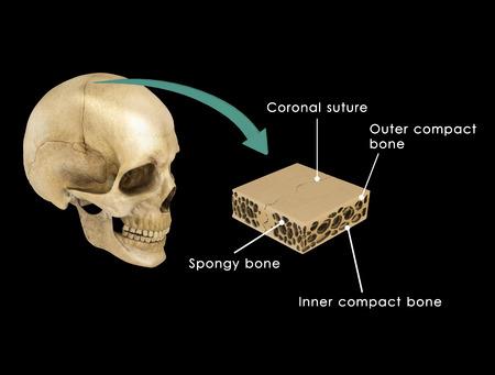 suture: Suture between skull bones