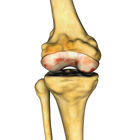 patella: Skeleton knee joint Stock Photo