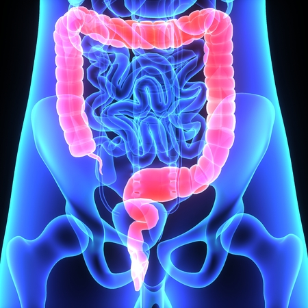 from small bowel: Large intestine