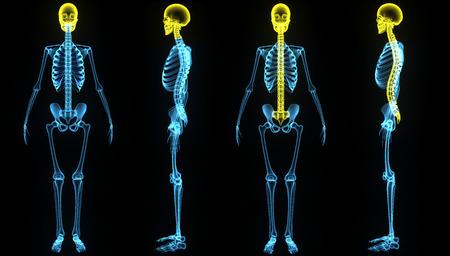 x ray skeleton: Skull with backbone