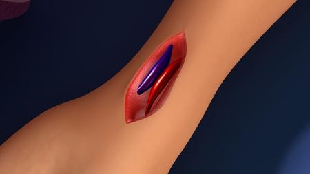 arteries: Arteries and veins