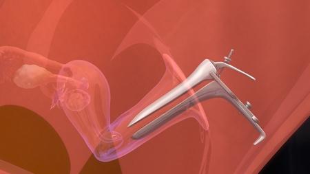 in vitro: La transferencia de embriones FIV