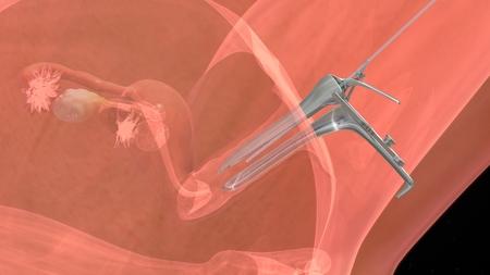 in vitro fertilization: IVF Embryo transfer