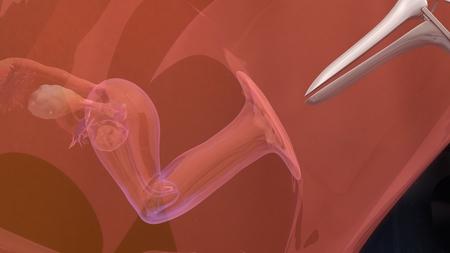 embryo: IVF Embryo transfer