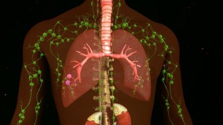 coronavirus: Lymph nodes