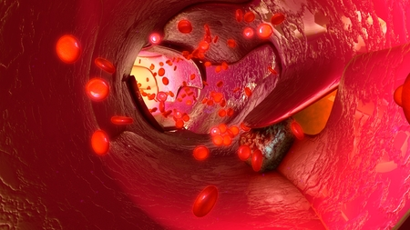 Tumour cells in blood vessels Stock Photo