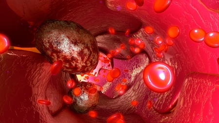 lymph vessels: Tumour cells in blood vessels Stock Photo