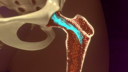 Bone Marrow Stock Photo