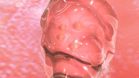 embryo: IVF Embryo transfe