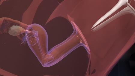 in vitro: Fecundación in vitro