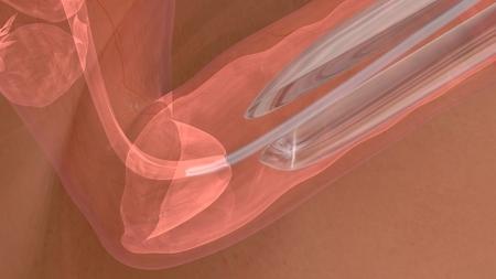 in vitro fertilization: Embryo transfer