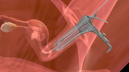 embryo: Embryo transfer