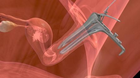 in vitro: Transferencia de embrión Foto de archivo