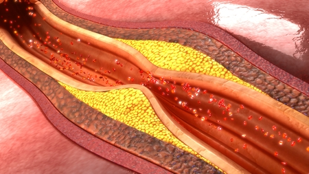 placa bacteriana: la placa de la arteria coronaria Foto de archivo