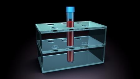 blood sample: Blood Sample Stock Photo