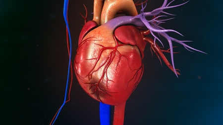 infarction: Myocardial Infarction Stock Photo