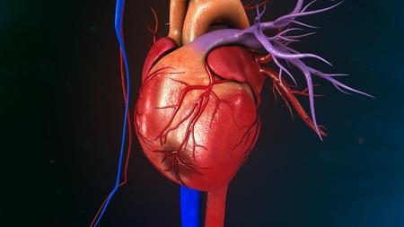 Myocardial Infarction Stock fotó