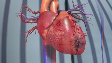 Myocardial Infarction Standard-Bild